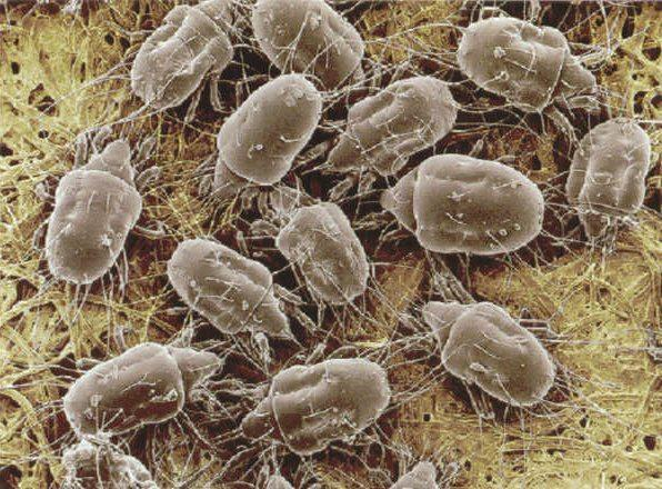 На фото - микроорганизмы, скрытые в небольшом количестве пыли