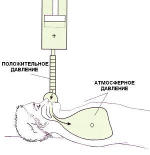 При PPV Давление на поверхности тела (Pbs) равно нулю, то есть соответствует атмосферному, а Pawo выше атмосферного, то есть положительное.